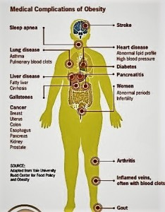 There are a lot of health problems that come with obesity but heart disease, diabetes and high blood pressure are the ones that people associate it with more. (Photo provided by the CDC)